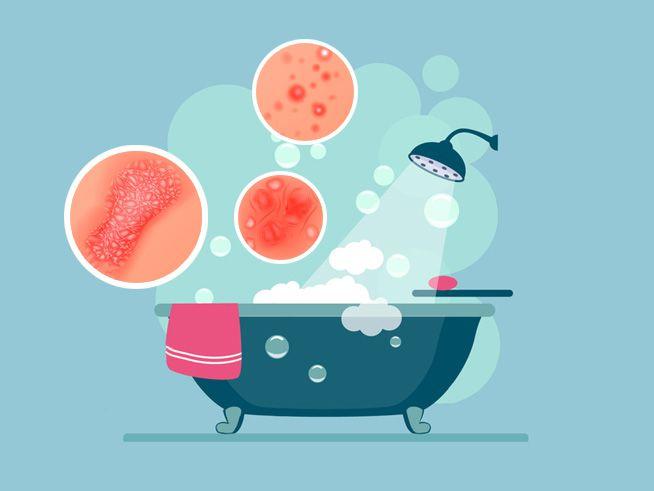 آیا آب حمام ما حساسیت و اگزما ایجاد می کند؟